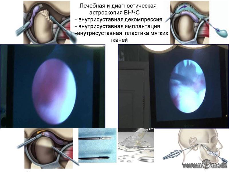 лечебно-диагностическая артроскопия сустава